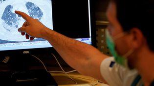 Le scanner des poumons d'une personne contaminée par le coronavirus à l'hôpital de Bruxelles (Belgique). (KENZO TRIBOUILLARD / AFP)