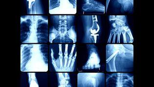 Implants et prothèses passés aux rayons X (illustration). (GETTY IMAGES)
