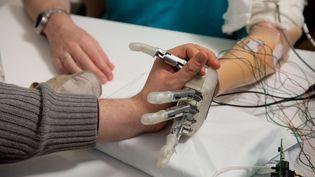 Dennis Aabo Sørensen, un Danois de 36 ans, serre une main grâce à une prothèse bionique, à Rome (Italie), le 24 février 2013. (PATRIZIA TOCCI / AP / SIPA)
