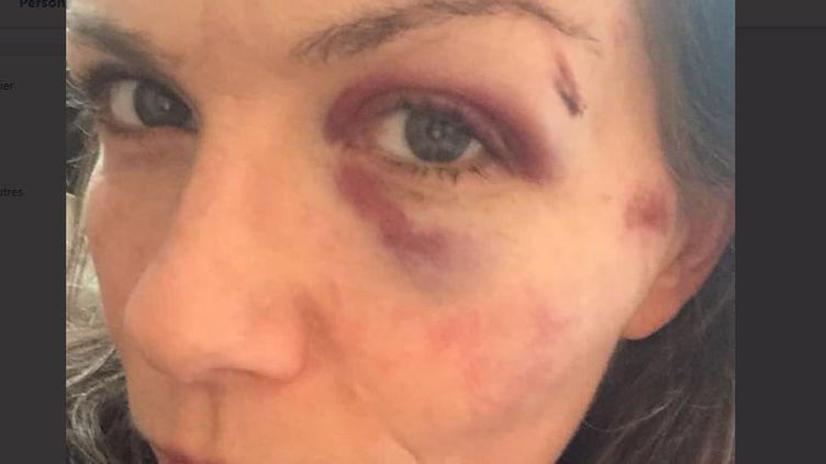 Selon l'association,la victime pourraitdevoir subir une opération du visage. (Capture d'écran Twitter Urgence Homophobie)