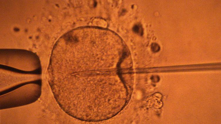 Image représentant la micro-injection par pipette d'un spermatozoïde dans un ovocyte, au Centre d'étude et de conservation des oeufs et du sperme(CECOS) de Rennes (Ille-et-Vilaine). (MARCEL MOCHET / AFP)