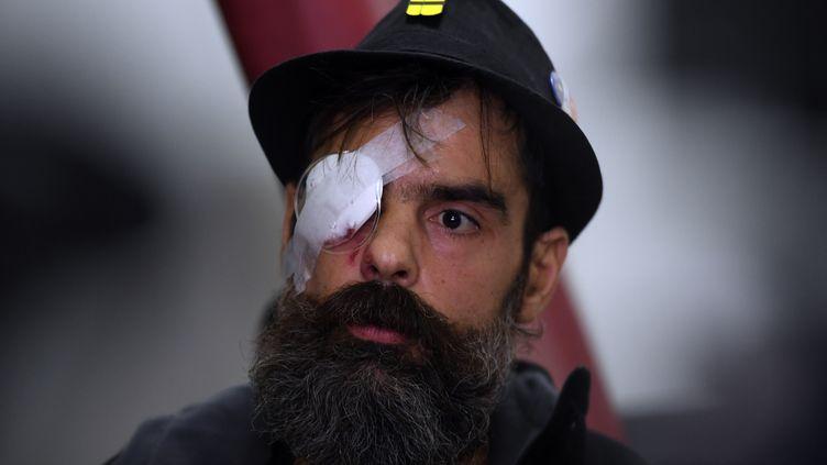 """Jérome Rodrigues, l'une des figures du mouvement des """"gilets jaunes"""", lors d'une conférence de presse à l'hôpital Cochin, à Paris, le 27 janvier 2019. (CHRISTOPHE ARCHAMBAULT / AFP)"""