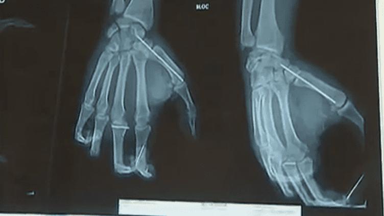 Radiographie des mains d'un patient blessé par un pétard lors du 14 juillet. (FTVI / FRANCE 2)