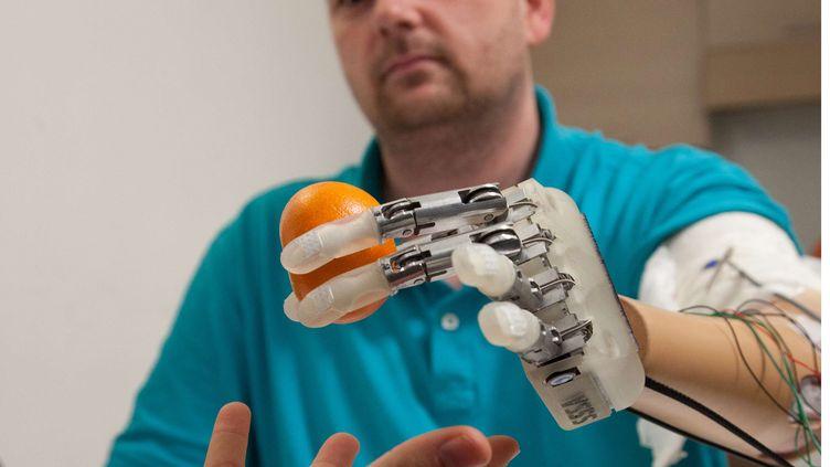 Dennis Aabo Sørensen, un Danois de 36 ans,tient une orange avec une prothèse bionique, à Rome (Italie), le 24 février 2013. (PATRIZIA TOCCI / AP / SIPA)