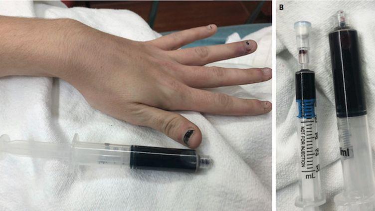 Une femme s'est présentée à l'hôpital avec le sang complètement bleu (Crédits Photo : Warren & Blackwood, NEJM 2019)