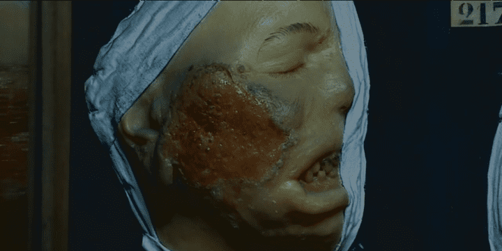Le musée des Moulages et ses 4807 exemples de lésions de peau est unique au monde !  (France 3)
