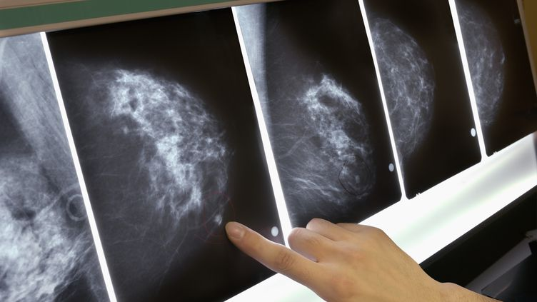 Détail d'une mammographie lors d'un dépistage du cancer du sein. (LESTER LEFKOWITZ / GETTY IMAGES)