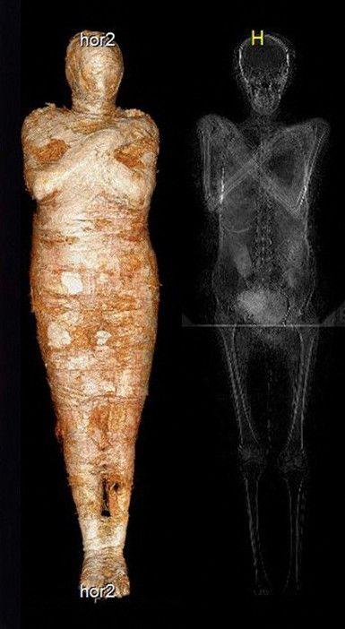 La momie est conservée au Musée National de Varsovie. (AFP PHOTOS - / WARSAW MUMMY PROJECT)