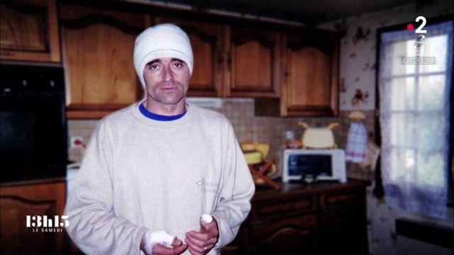 """VIDEO. """"Mon mari était en torche..."""" : comment un coupeur de feu de père en fils a soigné un homme gravement brûlé"""