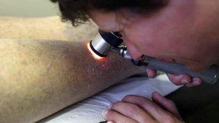 Un dépistage de cancers de la peau est proposé par les dermatologues. (MAXPPP)
