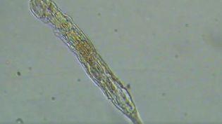 Image du rotifère qui a survécu pendant environ 24000 ans. (CURRENT BIOLOGY / CAPTURE D'ÉCRAN)