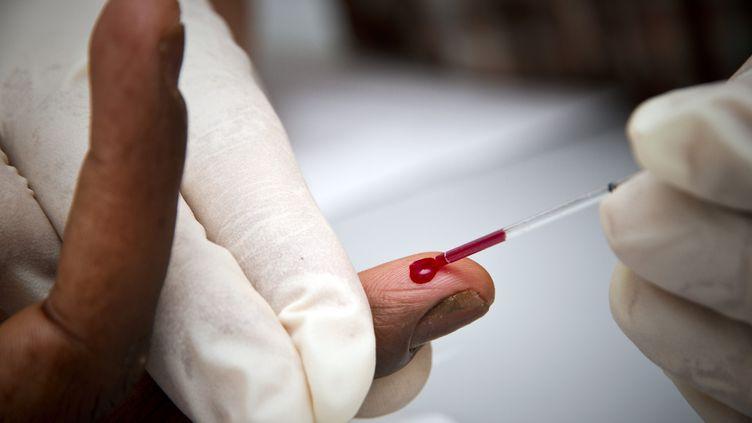 Un test rapide de dépistage du VIH, le 06 avril 2010. (JODY AMIET / AFP)