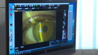 Le glaucome est une maladie grave qui peut aller jusqu'à rendre totalement aveugle. Les ophtalmologues alertent sur la nécessité de dépister cette maladie le plus tôt possible. (CAPTURE D'ÉCRAN FRANCE 3)