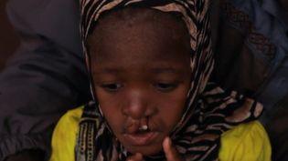 Une petite Malienne atteinte d'un bec de lièvre. (France 2)