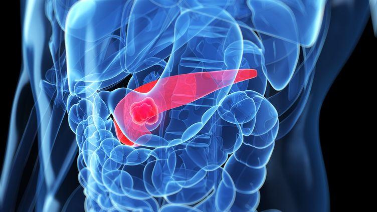 Une représentation en 3D d'un cancer du pancréas.  (SCIENCE PHOTO LIBRARY / AFP)