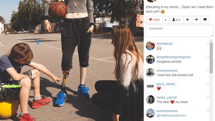Photographie du compte Instagram de Lauren Wasser, amputée à la suite d'un syndrome du choc toxique. (LAUREN WASSER / INSTAGRAM)