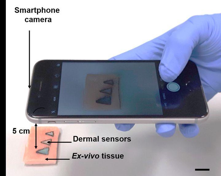 Une illustration de l'utilisation du smartphone pour avoir plus de détails lors de la coloration d'un nouveau concept de tatouage, imaginé par des chercheurs allemands. (ALI YETISEN)