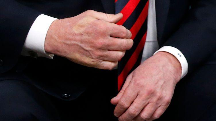 L'empreinte du pouce d'Emmanuel Macron sur la main droite de Donald Trump, après leur rencontre au G7 vendredi 8 juin, àLa Malbaie, au Québec. (LEAH MILLIS / X90205)