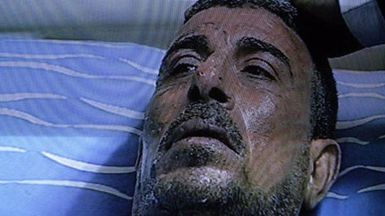Abdo Abdelmoneim s'est immolé le 17 Janvier 2011, devant l'Assemblée du Peuple au Caire. (AFP/Mohammed Abed (Photo d¿un écran de l'hôpital al-Munira au Caire))