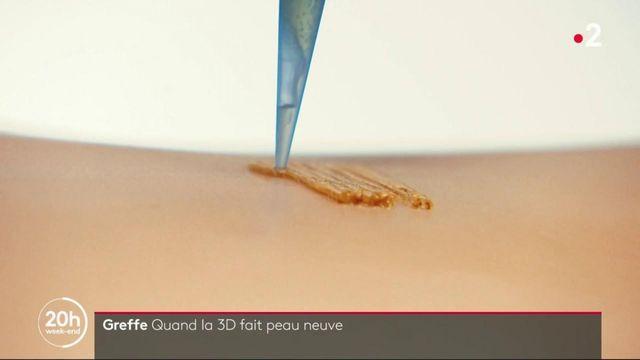 Biotechnologies : des greffons de peau fabriqués par une imprimante 3D