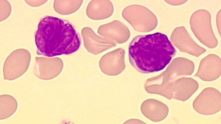 Le Yescarta doit traiter les lymphomes non hodgkiniens agressifs, une tumeur du système lymphatique