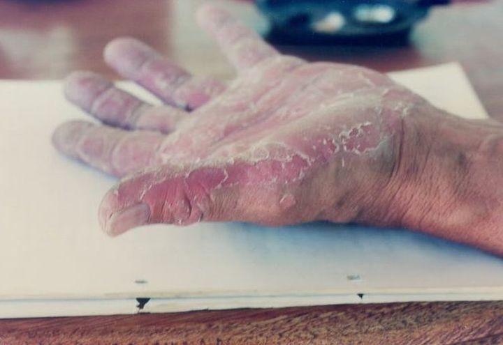 Il n'existe, pour le moment, pas de traitement contre l'EKH et ses effets sur la peau. (Supplied)
