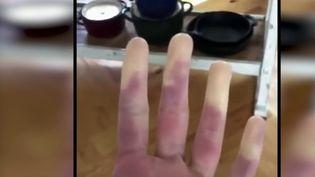 Quand le froid apparaît,certaines personnesont les doigts qui deviennent blancs, engourdis. Ces symptômes sont ceux de la maladie de Raynaud, une affection bénignepourla grande majorité des cas. (CAPTURE ECRAN FRANCE 2)