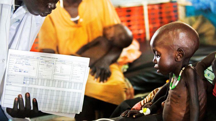 Un médecin examine un enfant de 3 ans qui souffre de malnutrition, au Soudan du Sud, le 11 octobre 2016. (ALBERT GONZALEZ FARRAN / AFP)