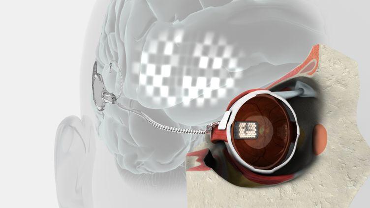 Leprototype d'un œil bionique. Photo diffusée par Bionic Vision Asutralia, le 30 août 2012. (BIONICS INSTITUTE / BIONIC VISION AUSTRALIA / AFP)