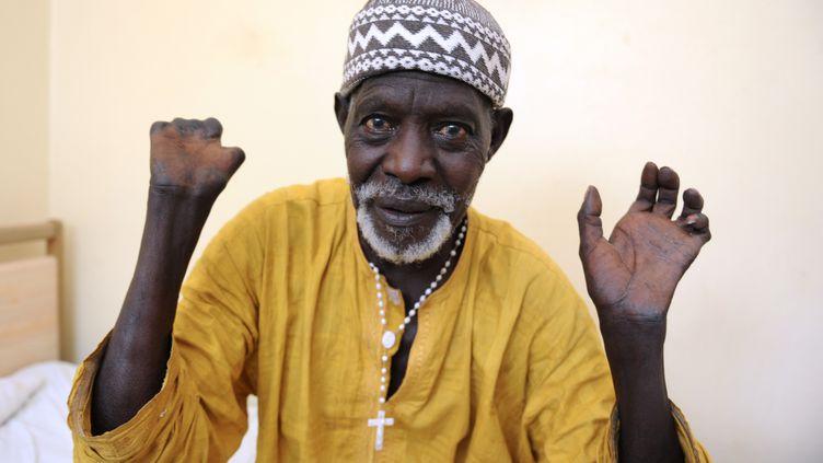 Patient sénégalais qui montre ses mains après avoir reçu un traitement et avoir été guéri de la lèpre. (SEYLLOU / AFP)