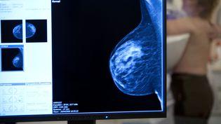 Une femme passe une mammographie à l'hôpital des Diaconesses, à Paris, le 28 mai 2009. (AMELIE BENOIST / BSIP)