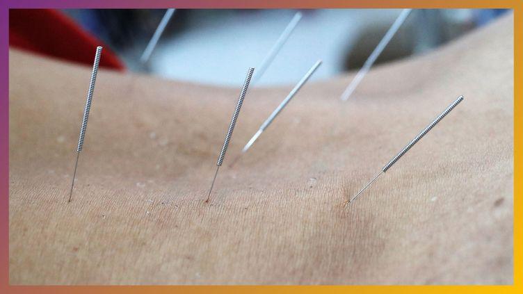 L'acupuncture est-elle efficace ? (Radio France)