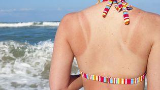 Les coups de soleil accélèrent le vieillissement de la peau et augmentent le risque de cancer. (JOEL CARILLET / E+ / GETTY IMAGES)