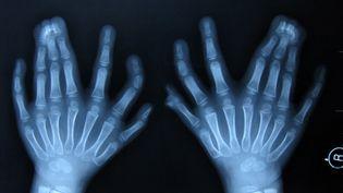 Un Chinois a battu le record du monde de 25 doigts et orteils : il est né avec 31 extrémités. (LI SHUANGQI / IMAGECHINA)