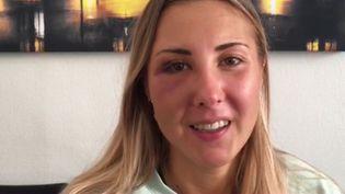 Elisabeth, étudiant à Strasbourg, témoigne de son agression, le 21 septembre 2020. (LUC DREOSTO / FRANCE BLEU / RADIO FRANCE)