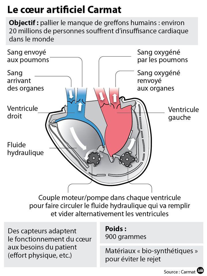 (Le cœur artificiel Carmat © Idé)