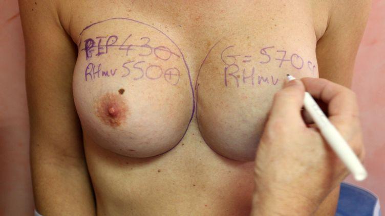 Un chirurgien s'apprête à retirer des implants mammaires PIP sur une patiente, en décembre 2011, à Nice (Alpes-Maritimes). (SEBASTIEN NOGIER / AFP)