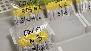 Des échantillons de coronavirus du laboratoire de microbiologie de l'hôpital de Varèse, en Italie le 3 avril 2020 (illustration). (MIGUEL MEDINA / AFP)