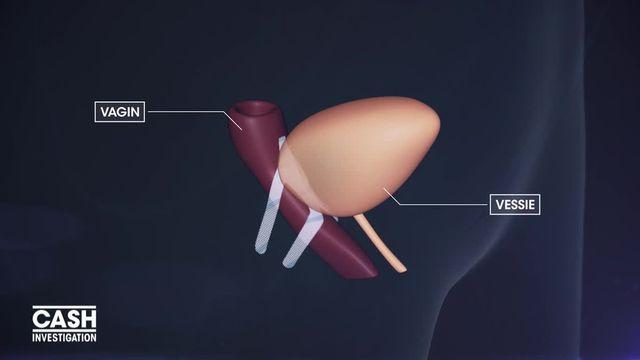 """VIDEO. """"Cash Investigation"""". Natacha vit un calvaire avec une prothèse vaginale qui n'a pas été conçue pour être explantée"""