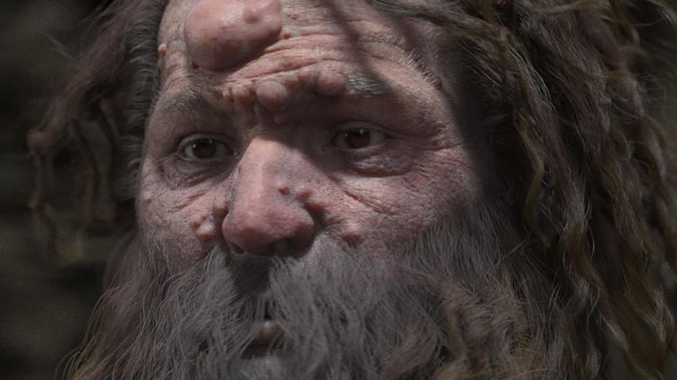 Selon une étude de chercheurs français publiée le 29 mars 2018, le célèbre homme de Cro-Magnon avait un visage marqué par de nombreux nodules bénins. (FROESCH/CHARLIER/VISUALFORENSIC/)