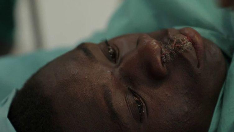Des chirurgiens français de la Chaîne de l'Espoir partent régulièrement au Mali pour opérer des jeunes atteints de Malformations au visage ou au cœur. Ils auront encore changé la vie de 50 enfants durant leur séjour. (France 2)