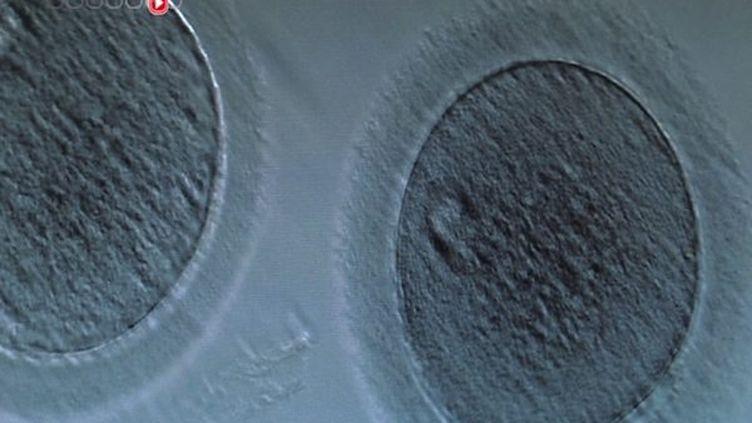 Endométriose : à quelles conditions les femmes peuvent-elles faire congeler leurs ovocytes ?