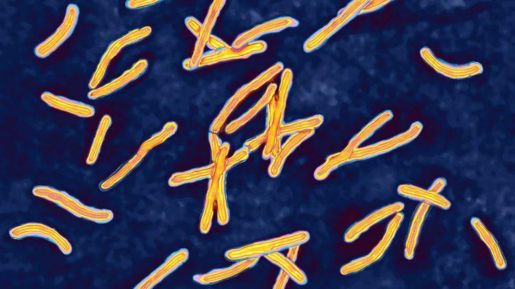 Vue non datée au microscope du bacille de Koch, la bactérie responsable de la tuberculose, ici grossie 1 000 fois. (GETTY IMAGES)
