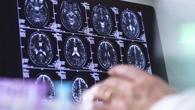 Des images d'IRM cérébrales. (Illustration). (TEK IMAGE/SCIENCE PHOTO LIBRARY / ABO)