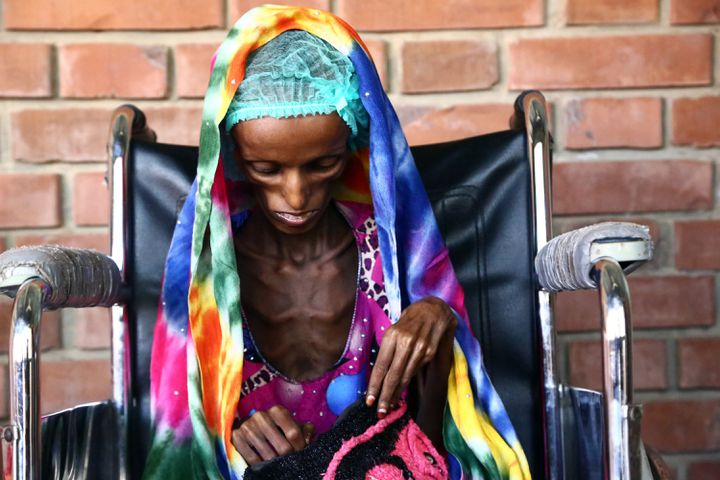 Saïda Ahmad Baghili, 18 ans, est assise sur une chaise roulante dans un hôpital à Hodeïda au Yémen, où elle était soignée pour malnutrition sévère, le 25 octobre 2016. (STRINGER / AFP)