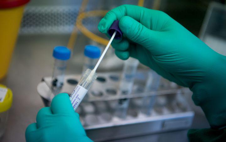 Un laborantin effectue le test d'un échantillon prélevé sur un cas suspect. (MARIJAN MURAT / DPA)