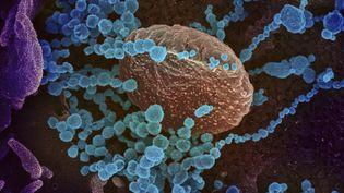 Le coronavirus SARS-CoV-2 vu au microscope électronique, le 27 février 2020. (AFP / NATIONAL INSTITUTES OF HEALTH)
