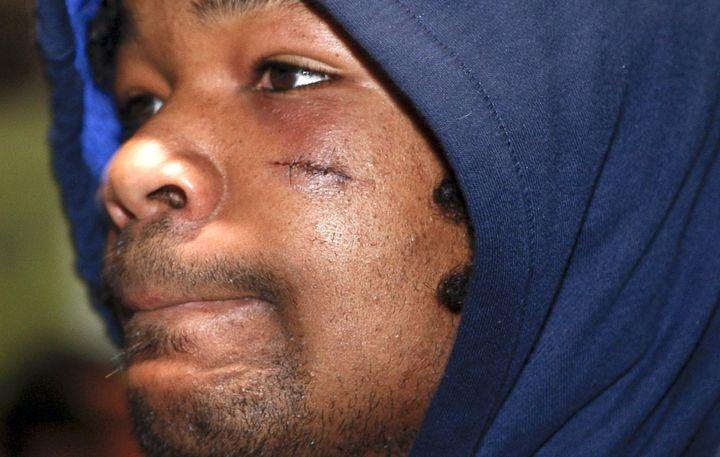 Mathieu Bastareaud, après qu'il ait heurté une table de nuit dans son hôtel de Wellington (Nouvelle-Zélande), en 2009. Au début, il avait parlé d'une agression dans la rue... (MATTHIEU DE MARTIGNAC / MAXPPP TEAMSHOOT)