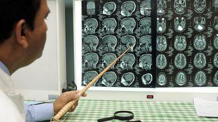 Images d'un cerveau réalisées par IRM. Photo d'illustration. (MAXPPP)