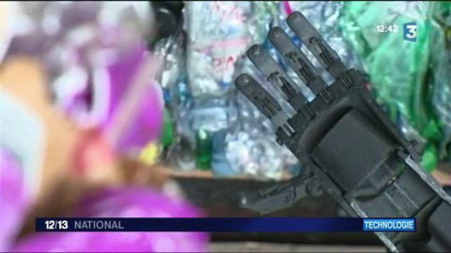 Des gobelets recyclés dans une prothèse